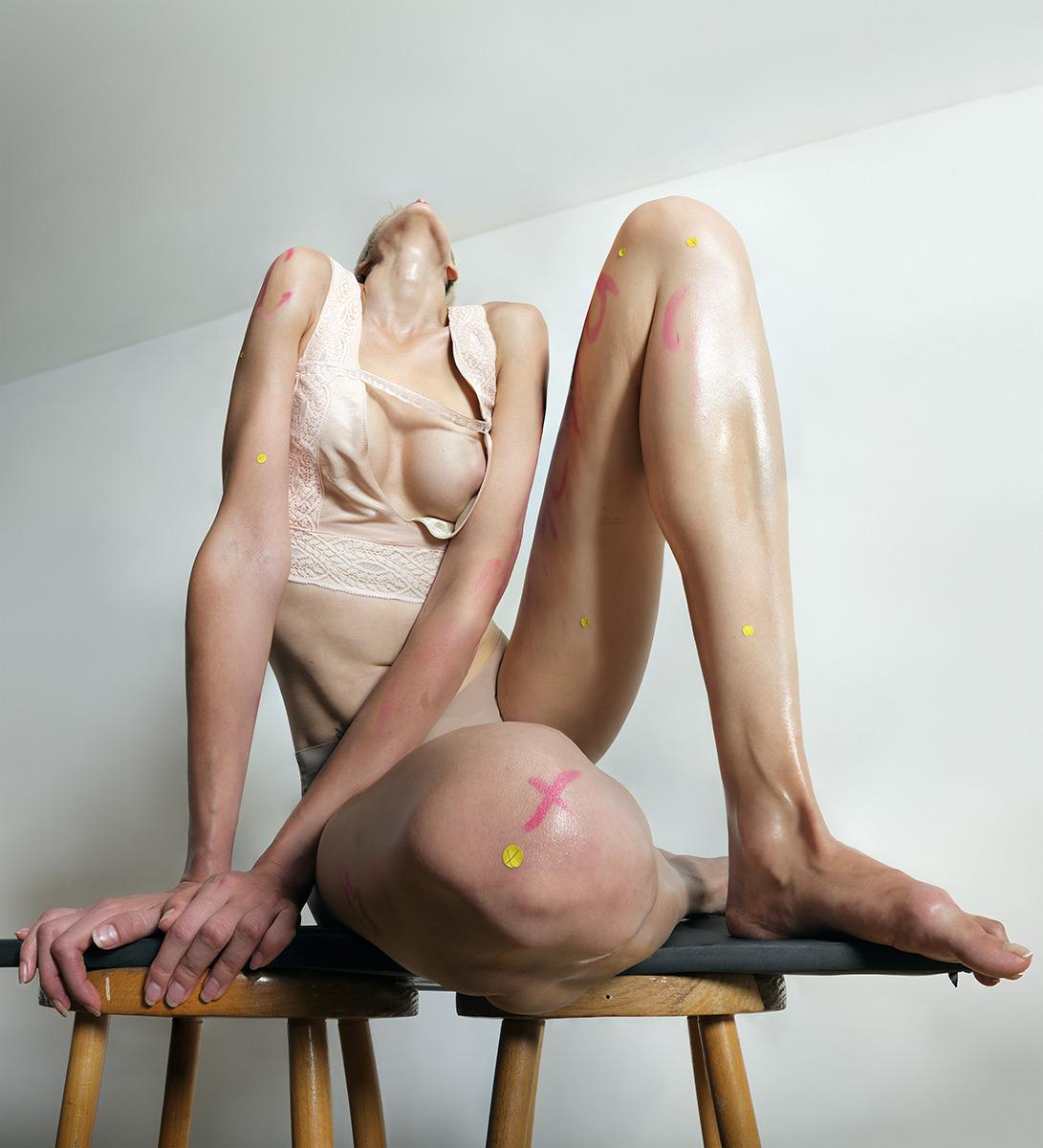 1. © Roger Weiss, hd070816_129ph, human dilatations